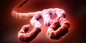 Ingresan a hospital de Nueva York a paciente por ébola