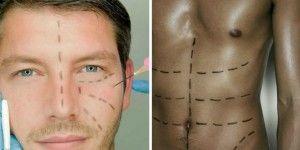 Crece el número de hombres que se someten a cirugías estéticas