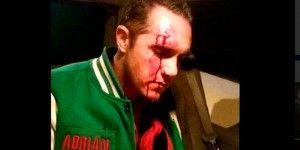 Rubalcava es dado de alta tras agresión