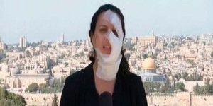 Granada golpea a periodista en el rostro