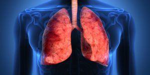 El cáncer de pulmón es la cuarta causa de muerte en México