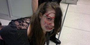 Demandan a la TSA por golpear a joven discapacitada