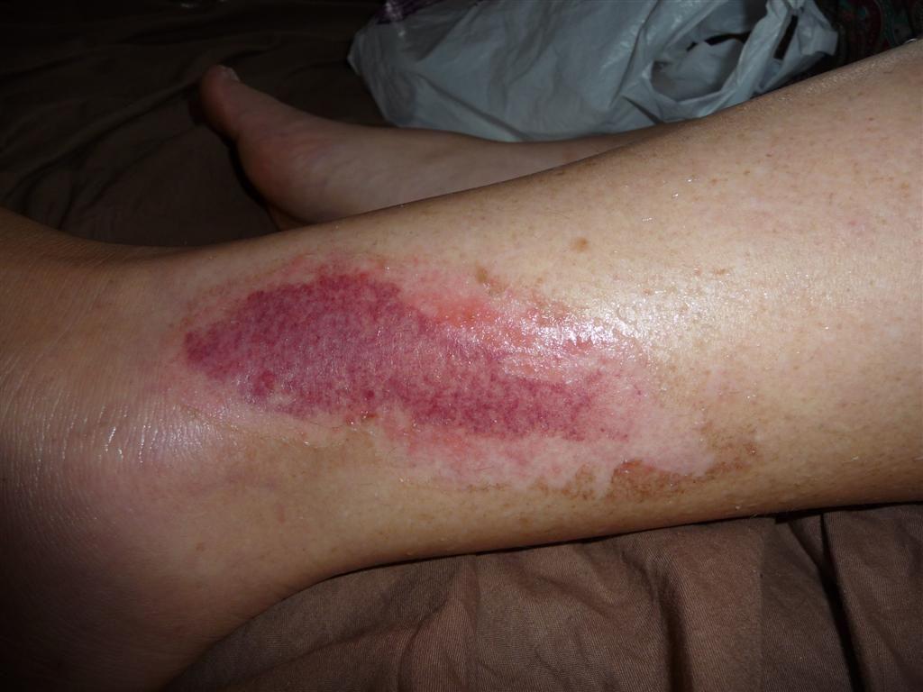 Es importante, una vez ocurrida la lesión, atenderla. Foto de internet.