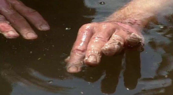 quemadura de manos
